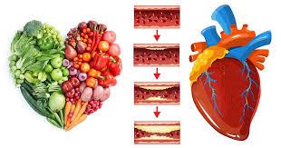 Coronary Heart Disease Nutrition